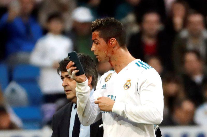 Photo of Zidane Revela Porque é Que Ronaldo Quis Ver o Corte no Telemóvel