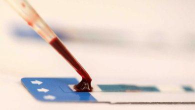 Photo of Médico com VIH usa seringa contaminada e inocula o vírus em 90 pessoas