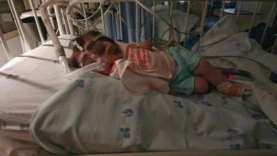 Photo of Bebé Matilde saiu dos cuidados intensivos após cirurgia à cabeça
