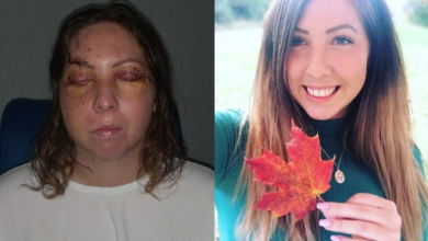 Photo of Ottawa woman attacked at resort in Mexico