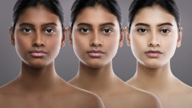 Photo of 'Whiter skin in 14 days': Tracking the illegal sale of skin-whitening creams in Canada