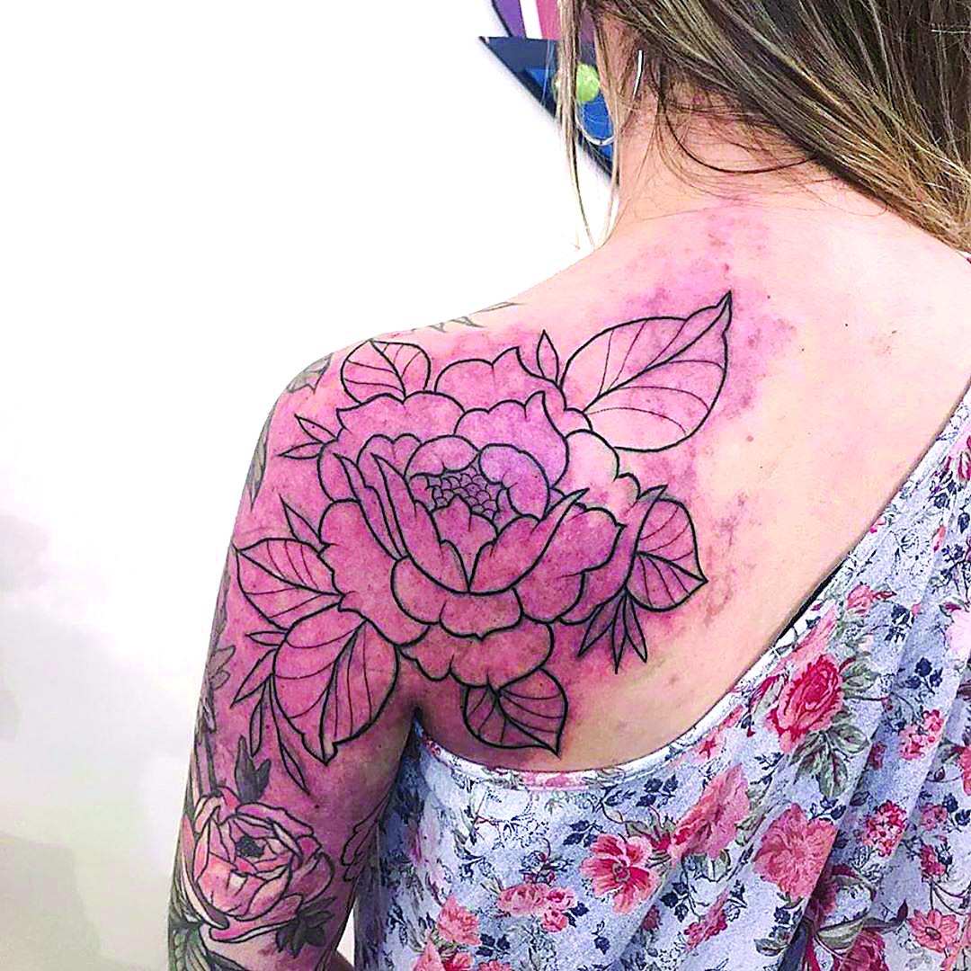 Tatuar a superação-rosas2-saude-mileniostadium